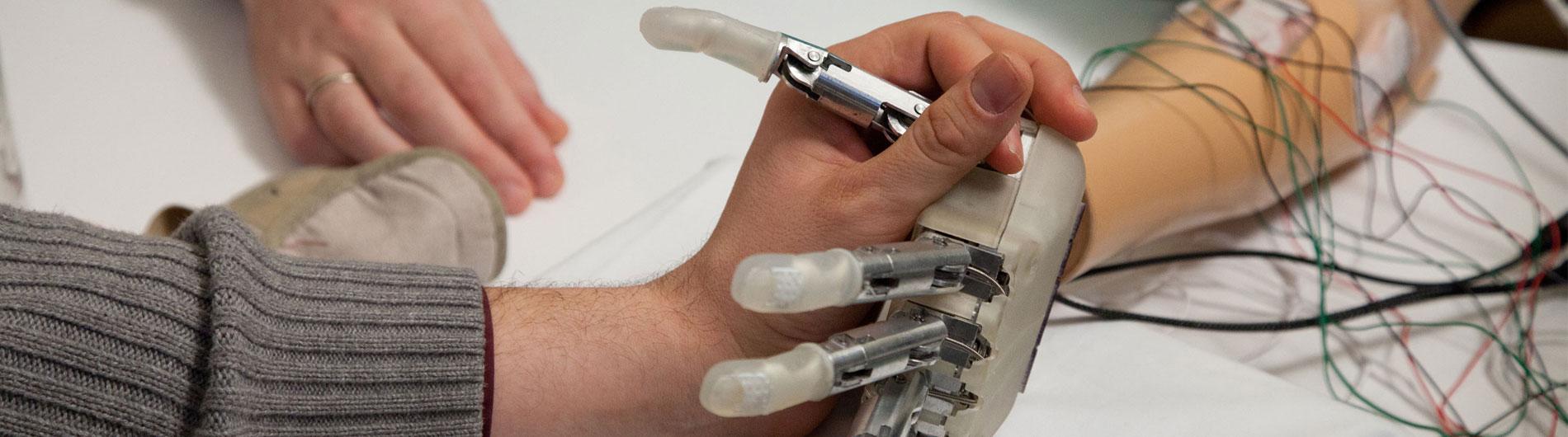 Sorensen prosthetic arm